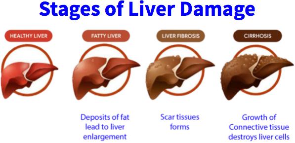 Triple Liver Health Ingredients